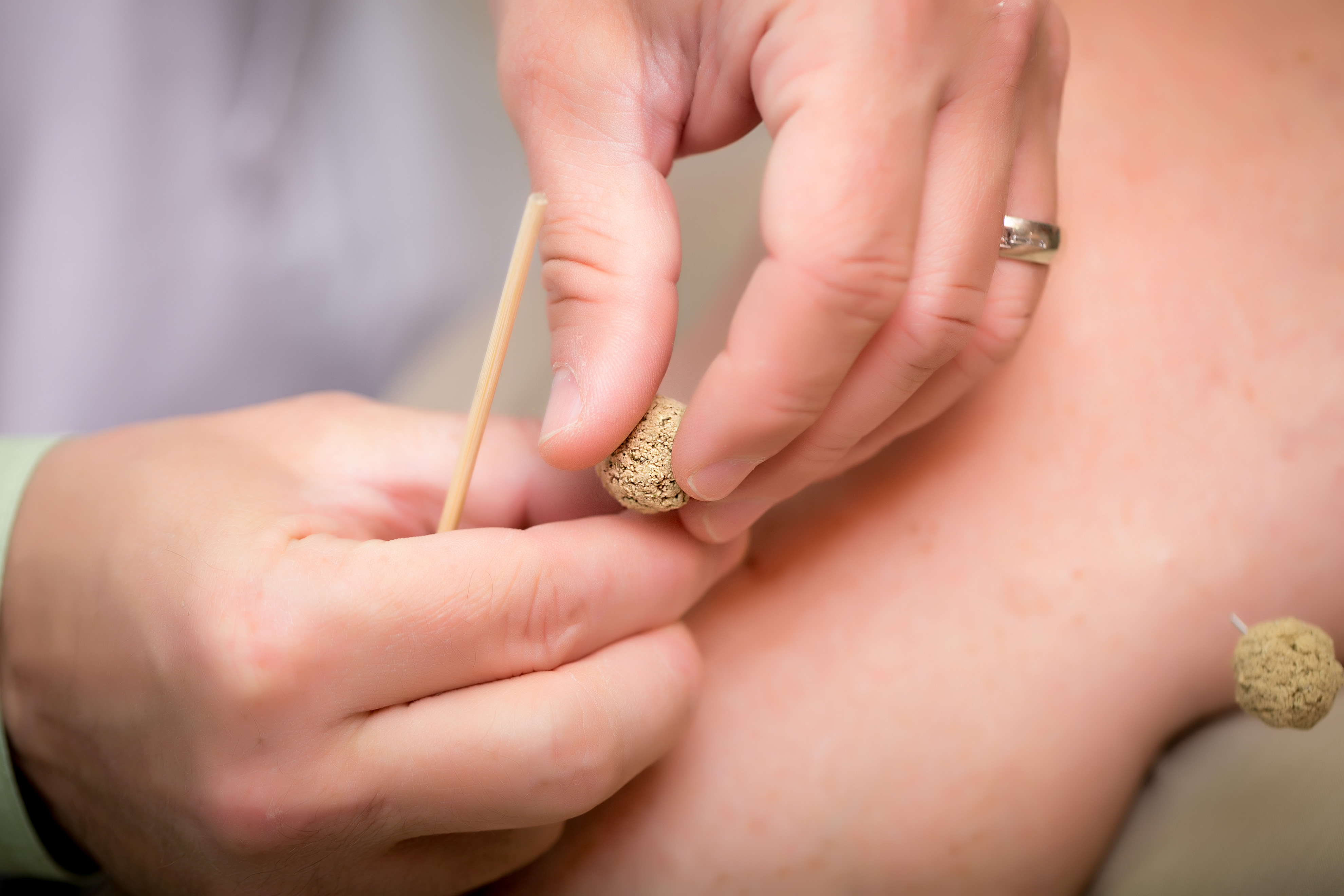 Image of someone inserting an acupuncture needle.